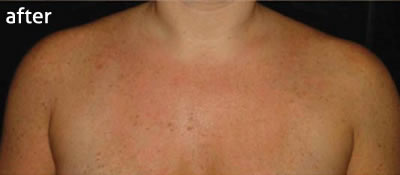 IPL skin rejuvenation to treat pigmentation marks, after photo