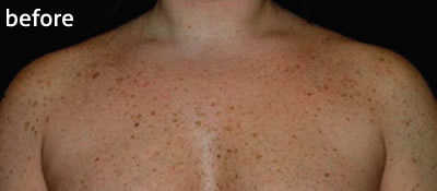 IPL skin rejuvenation to treat pigmentation marks, before photo
