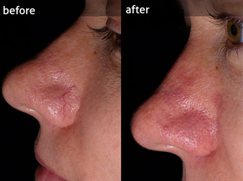 Thread vein removal on the face