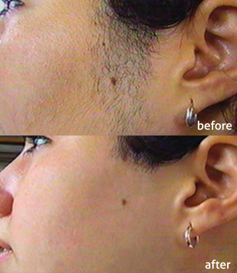 IPL hair removal on face, before and after photos